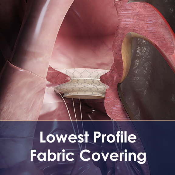 Low Profile Fabric Coverings for Mitral, Aortic and other Structural Heart Valves