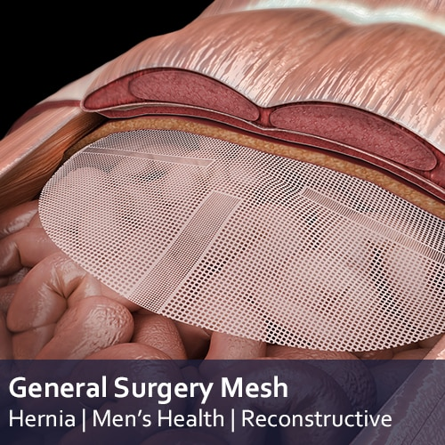 General Surgery mesh Applications - resorbable, non resorbale and semi-resorbable mesh