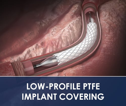 LOW-PROFILE PTFE IMPLANT COVERING